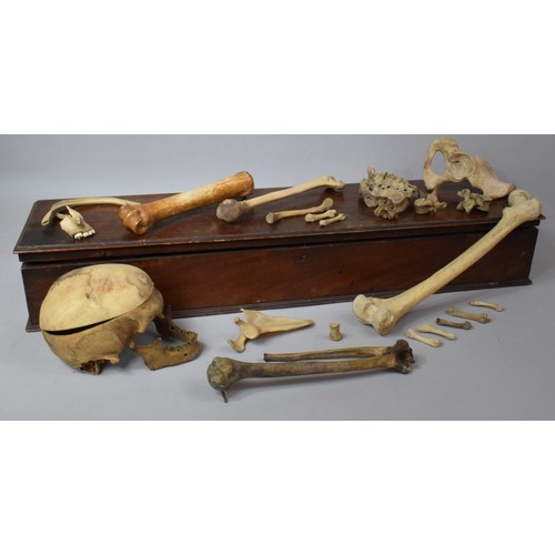 135 - A 19th Century Mahogany Box Containing a Large Quantity of Human Bones, Probably a Teaching Aid, 93c...
