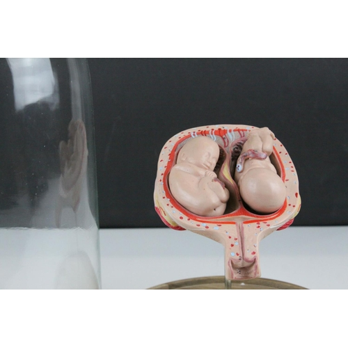 56 - Anatomical Educational Teaching Model of Twin Babies in a Womb contained within a Glass Dome, 39cms ...