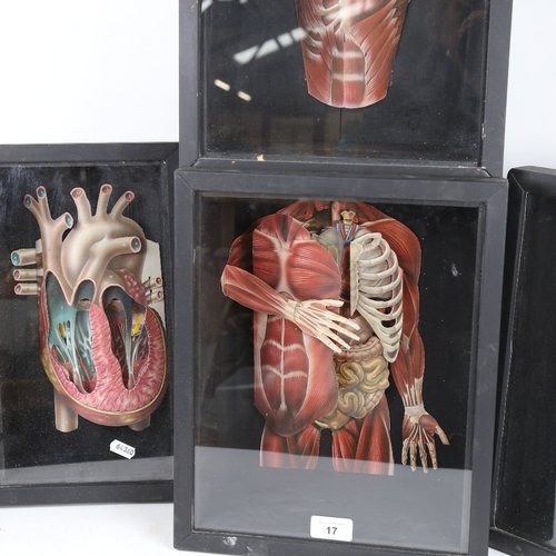 17 - A group of four 3-dimensional anatomical cardboard cut-outs, in display case frames, largest height ...