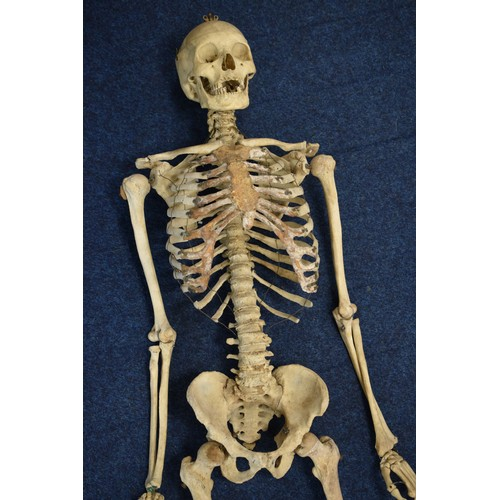 536a - Antique Real Adult Human Skeleton approx 63