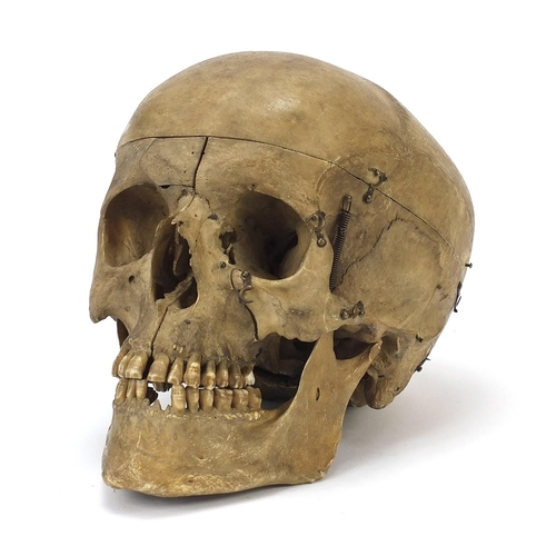 7 - 18th/19th century dissected medical human skull with Latin inscriptions and pine box, the skull 24cm...