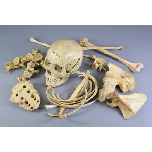 17 - A Human Skull and Part Skeleton. The skull has a sprung lower jaw and removable top; other bones inc...